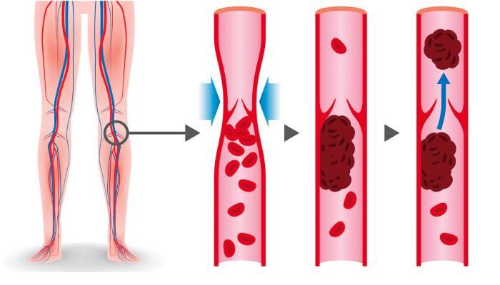 Диагностика и лечение тромбоза (Сергиев Посад) | Парацельс
